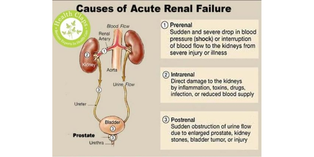 Acute Kidney Injury Classification Diagnosis And Management Health And Medicine