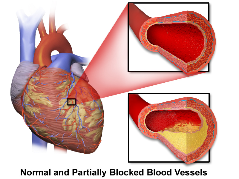 New System Limits Cardiac Damage with Rapid Response