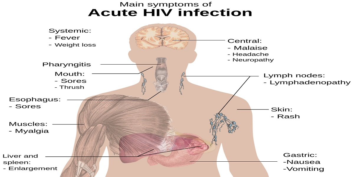 Fourth-Generation Rapid Diagnostic Tests for Acute HIV-1 Infections