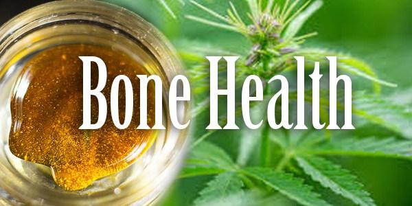 Cannabidiol Enhances Fracture Healing | Cannabis Sciences