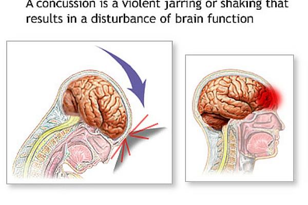 Влияние сотрясение мозга на зрение