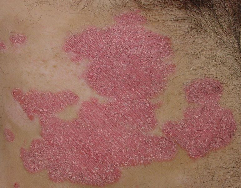 New Treatment for Psoriasis and Other Autoimmune Diseases