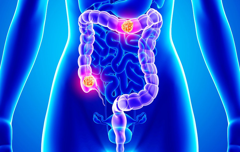 Streptococcus Gallolyticus Promotes Colon Cancer Microbiology