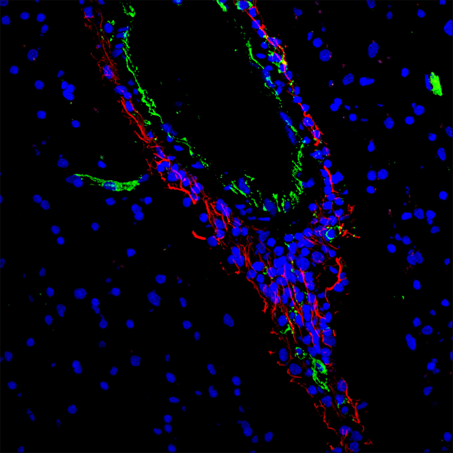 New Drug For Multiple Sclerosis Potential Therapeutic