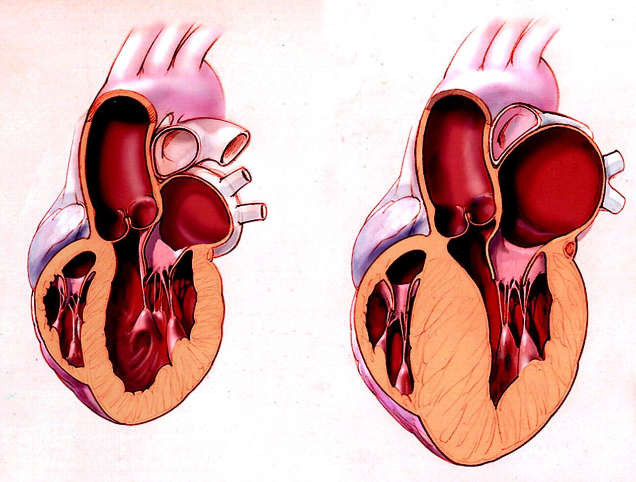 отрицает, картинка желудочка сердца облачном
