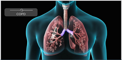 Chronic Obstructive Pulmonary Disease COPD | | Content Tag